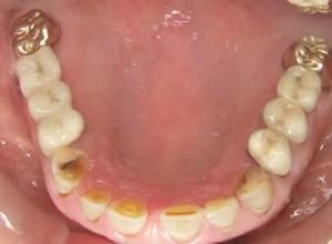 apple dental implant centre vancouver