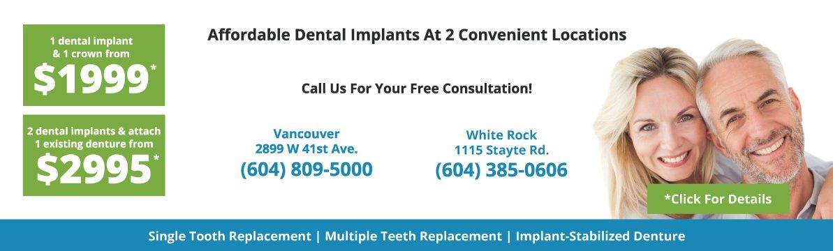 Our Dental Implant pricing will have you smiling and saving all the way to a new you.