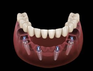 All-on-four Dental Implant Supported Denture