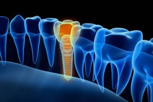 Visual representation of a dental implant